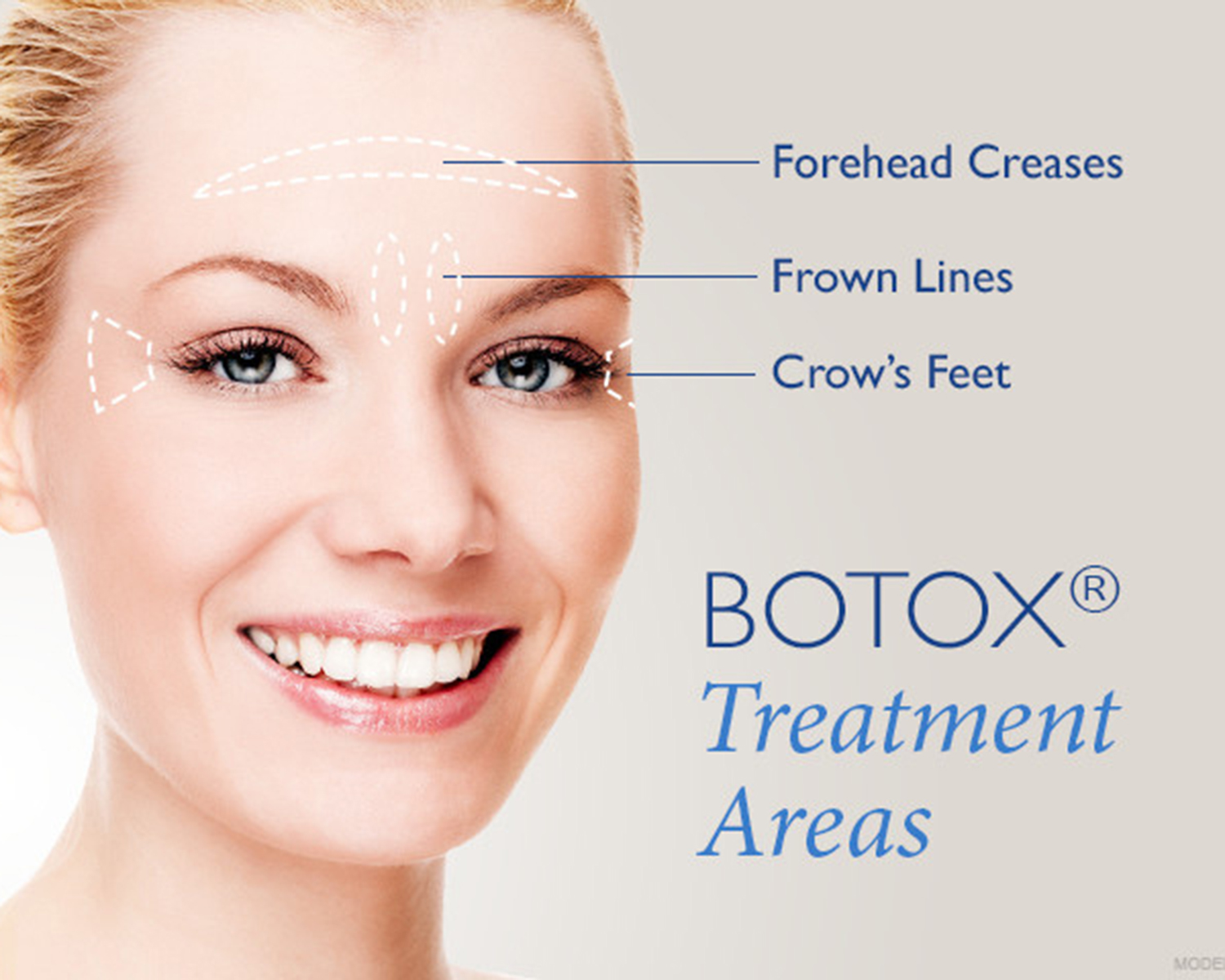 Botox current